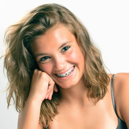 Stevens Point Orthodontics   Traditional Braces