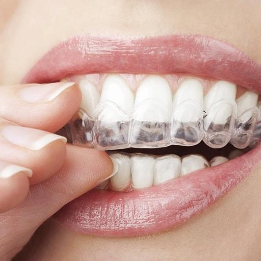 Stevens Point Orthodontics   Invisalign